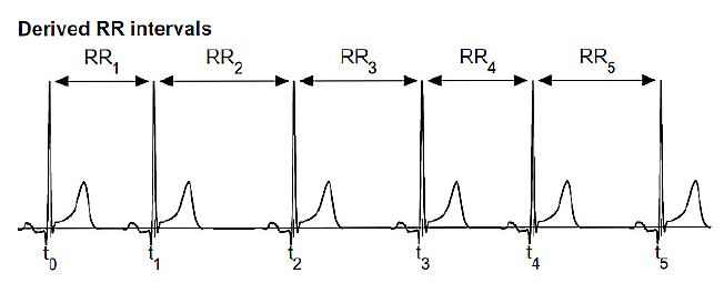 derived-rr-intervals-out-of-kubios_668